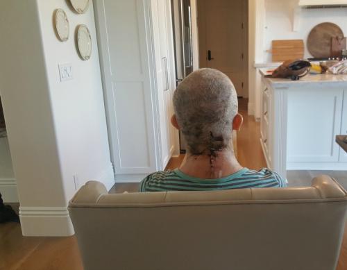 Cancer head